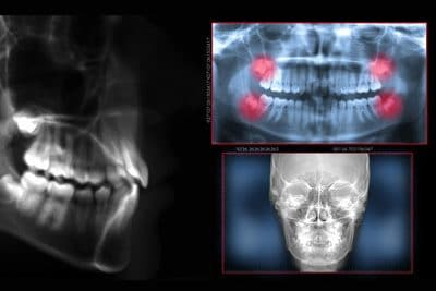 digital radiolography 3d